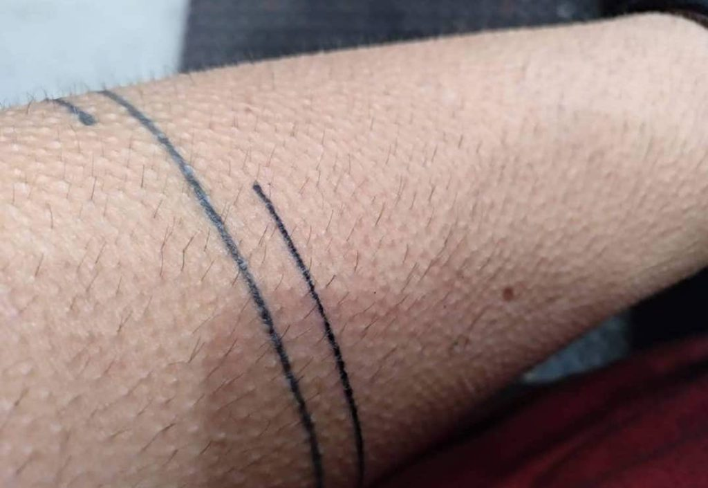 stick and poke tattoo line